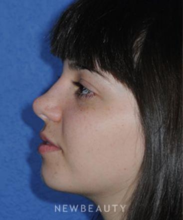 dr-ducic-rhinoplasty-b