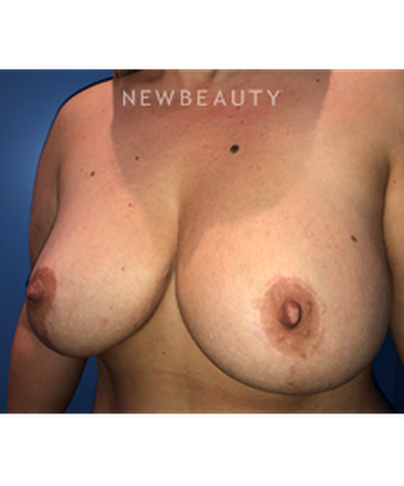 dr-stephen-greenberg-breast-lift-b