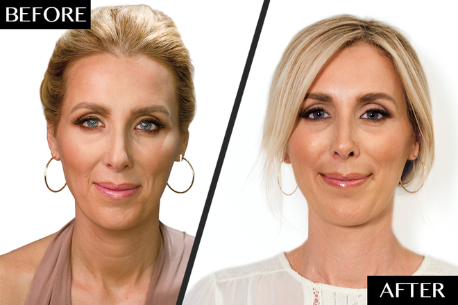 Restylane Refyne Restylane Defyne Before & After Experience - NewBeauty