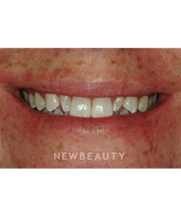 dr-niloufer-hamsayeh-smile-makeover-b