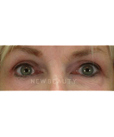 dr-cory-yeh-blepharoplasty-b
