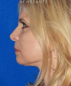 dr-konstantin-vasyukevich-upper-and-lower-blepharoplasties-b
