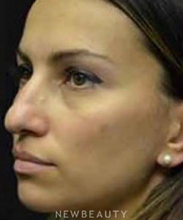 dr-aviva-preminger-rhinoplasty-b
