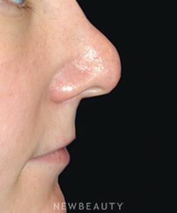 dr-lee-ann-m-klausner-revision-rhinoplasty-b