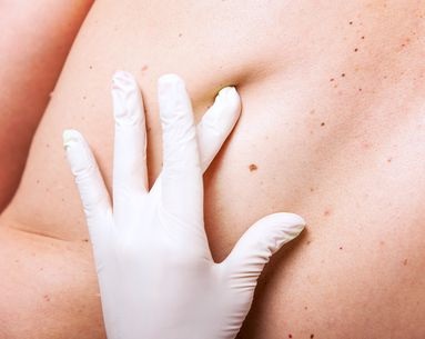 How to Know if a Mole is Skin Cancer