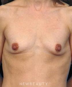 dr-bradley-bengtson-shaping-the-breast-b