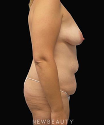 dr-linda-swanson-mommy-makeover-b