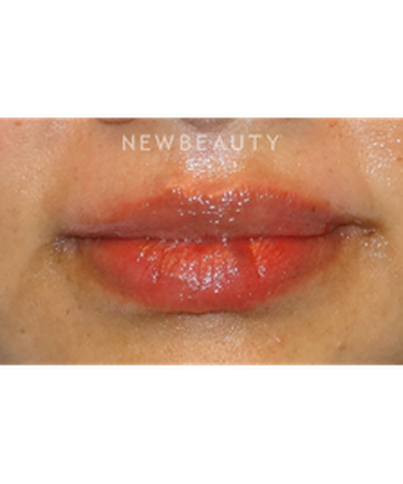 dr-jeffrey-yager-lip-filler-b