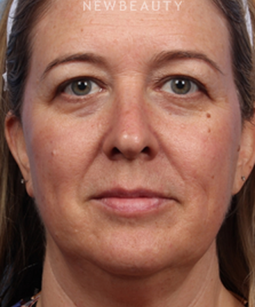 dr-kelly-bomer-upper-blepharoplasty-liquid-facelift-b