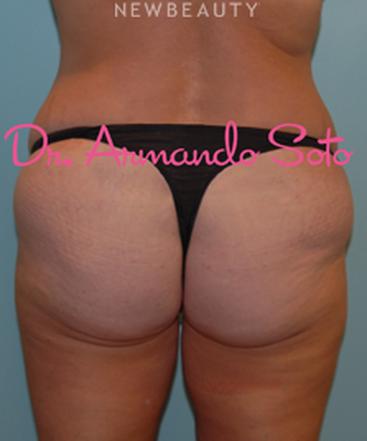 dr-armando-soto-beautiful-body-lift-b