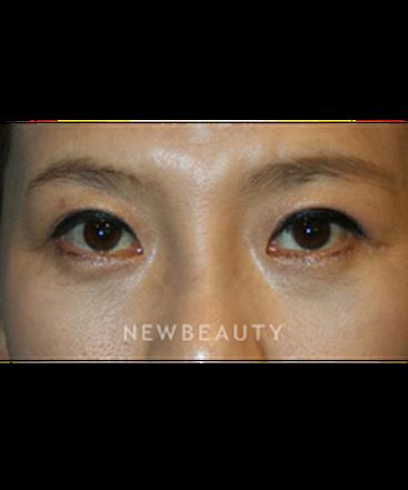 dr-john-kang-blepharoplasties-rhinoplasty-b