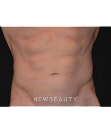 dr-hooman-khorasani-liposuction-b