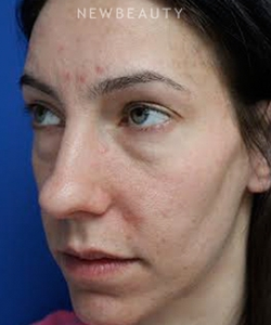 dr-joseph-russo-beautiful-results-eye-ebg-b