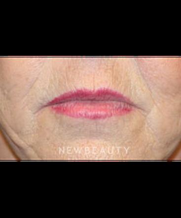 dr-christine-hamori-lip-lift-b