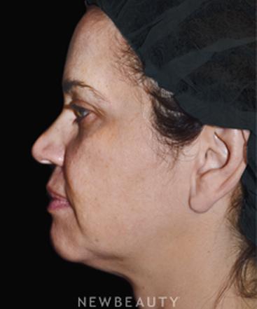 dr-janice-lima-maribona-skin-tighteners-b