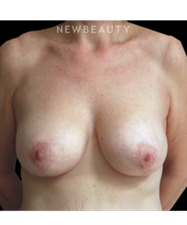 dr-roman-rayham-breast-lift-b