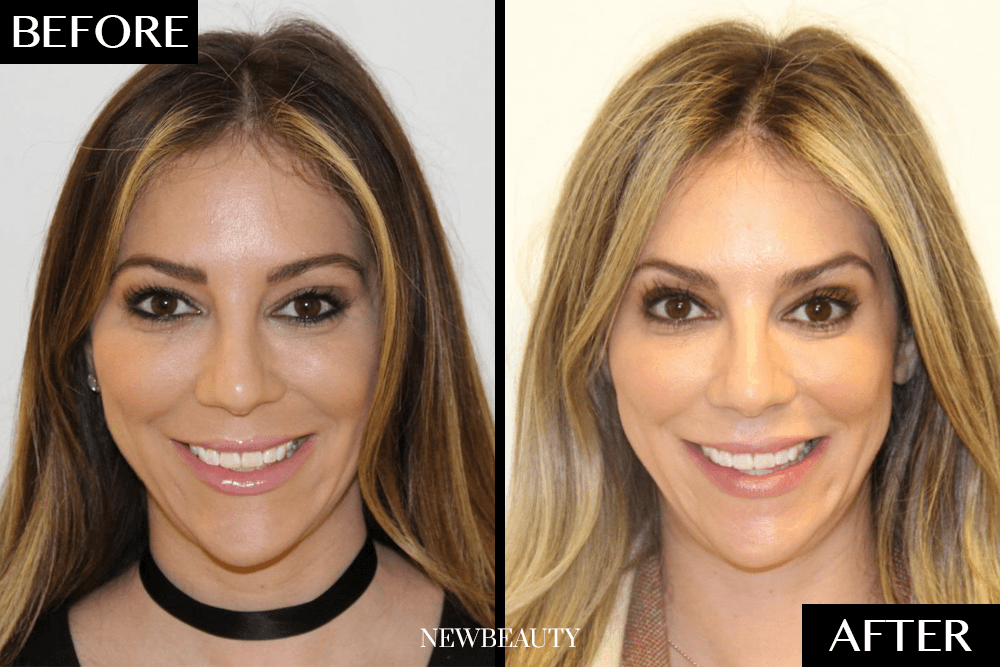 Invisalign Before And After Newbeauty