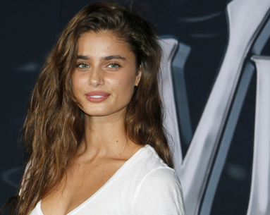 This Victoria's Secret Angel Is Showing Off Her Bare Skin With Pimples
