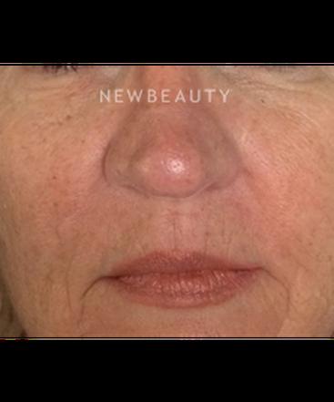 dr-kim-nichols-facial-rejuvenation-b