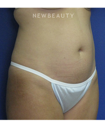 dr-joseph-russo-liposuction-of-the-abdomen-b