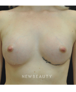 dr-andrew-smith-breast-augmentation-b
