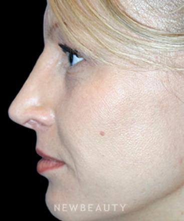 dr-kelly-bomer-rhinoplasty-b