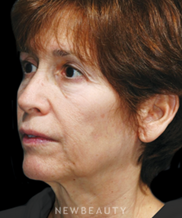 dr-james-marotta-maintaining-results-b