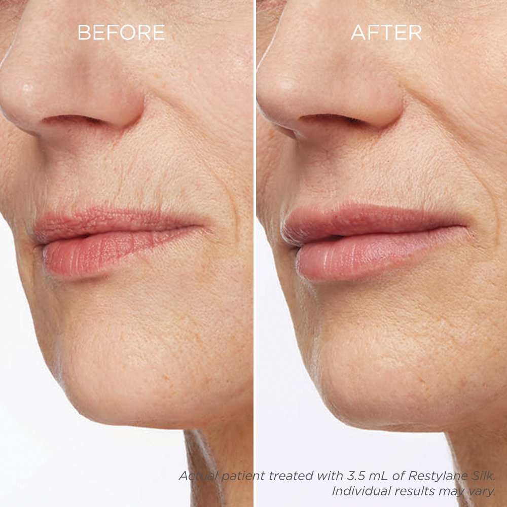 A Better Way to Get More Natural Looking Lips - NewBeauty