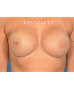 dr-bryan-gawley-breast-reconstruction-b