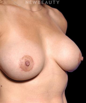 dr-kamran-khoobehi-breast-implants-b