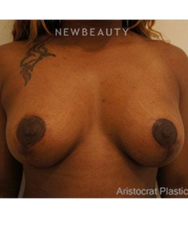 dr-kevin-tehrani-breast-lift-b