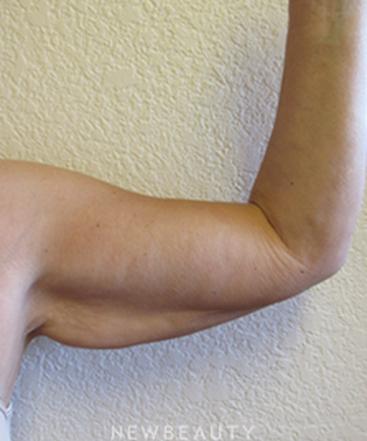 dr-jennifer-boll-arm-lift-b