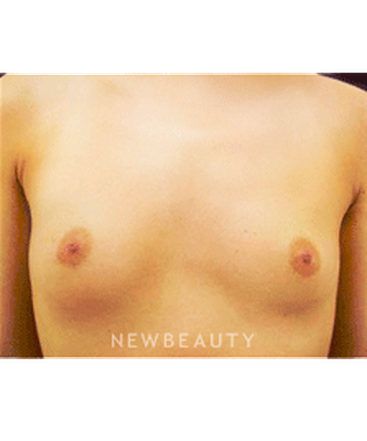 dr-kevin-tehrani-saline-breast-implants-b