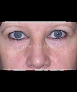dr-phillip-chang-eyelift-b