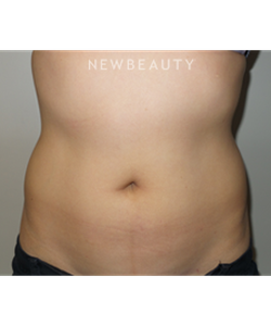 dr-sanjay-grover-coolsculpting-b