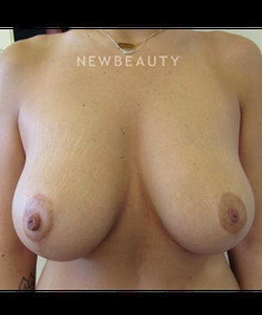 dr-jennifer-e-boll-breast-lift-b