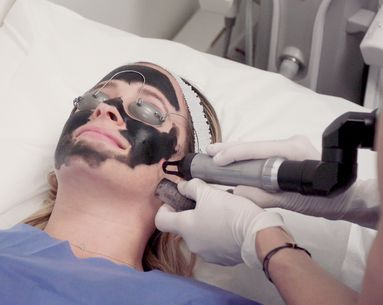 The Carbon Laser Peel IS the Secret to Better Skin in 20 Minutes