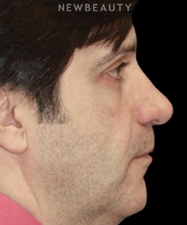 dr-adam-hamawy-new-nose-b