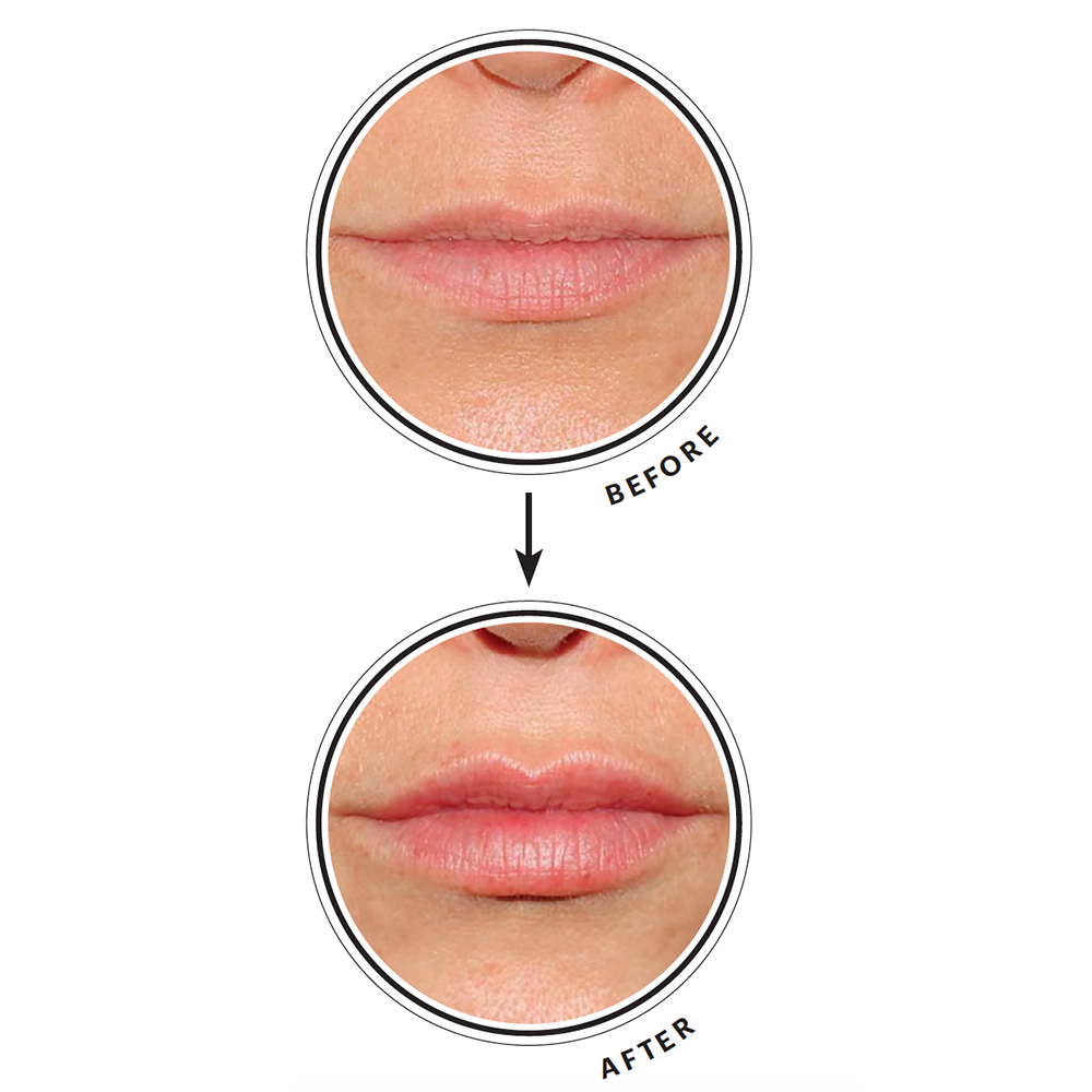How to Make Thin Lips Look Fuller - NewBeauty