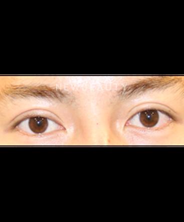 dr-lily-lee-upper-blepharoplasty-b