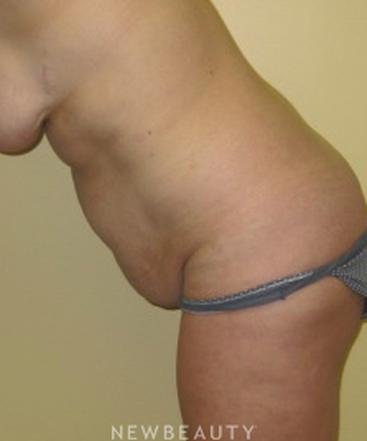 dr-beth-collins-tummy-tuck-b
