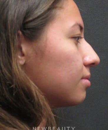 dr-elie-levine-rhinoplasty-b