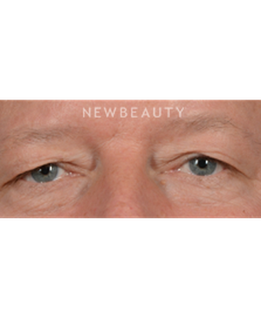 dr-jeffrey-b-wise-upper-blepharoplasty-b