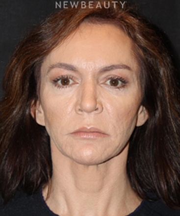 dr-ann-c-zedlitz-nonsurgical-rhinoplasty-b