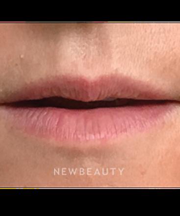 dr-hooman-khorasani-lip-enhancement-b