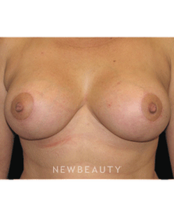 dr-sean-simon-breast-reduction-breast-lift-b