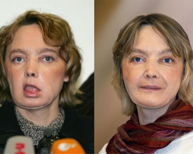 The World's First Face Transplant Patient Dies at 49