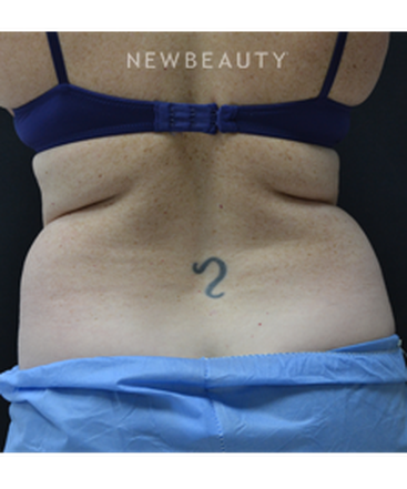 dr-julie-russak-coolsculpting-b