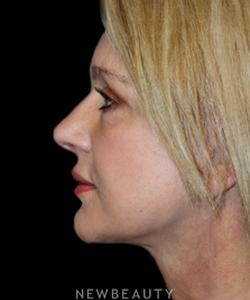 dr-brent-smith-upper-blepharoplasty-necklift-b