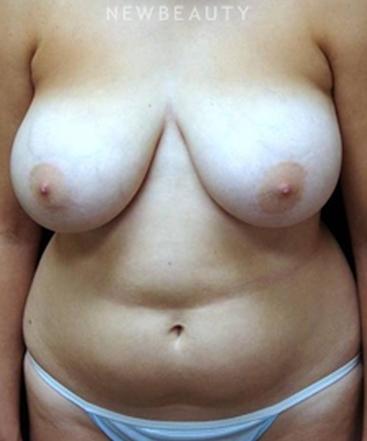 dr-mokhtar-asaadi-vaser-liposuction-b